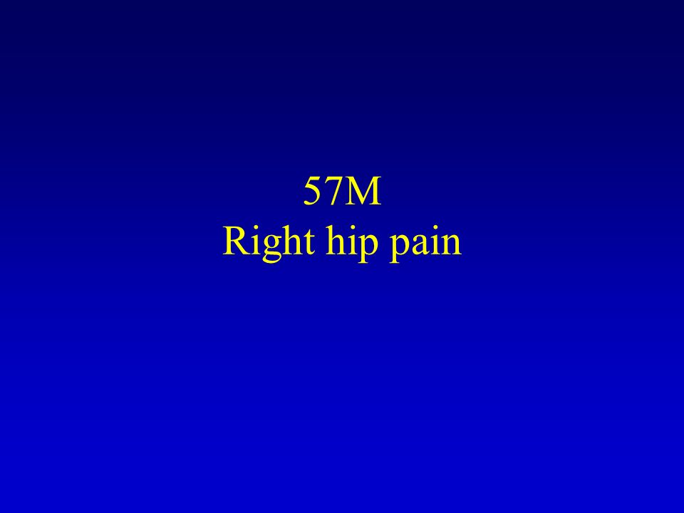 57M Right hip pain