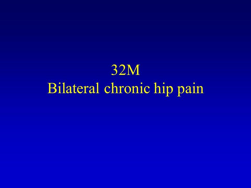32M Bilateral chronic hip pain