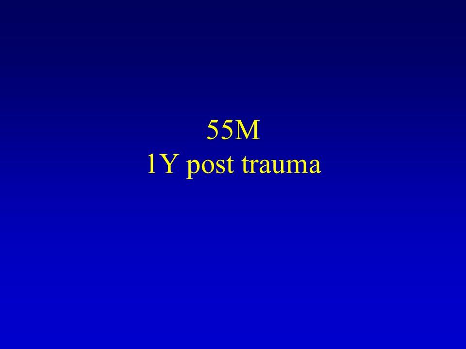 55M 1Y post trauma