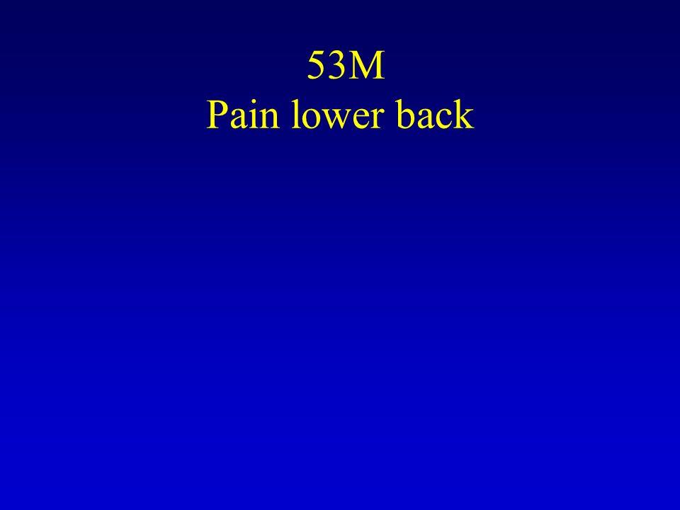 53M Pain lower back