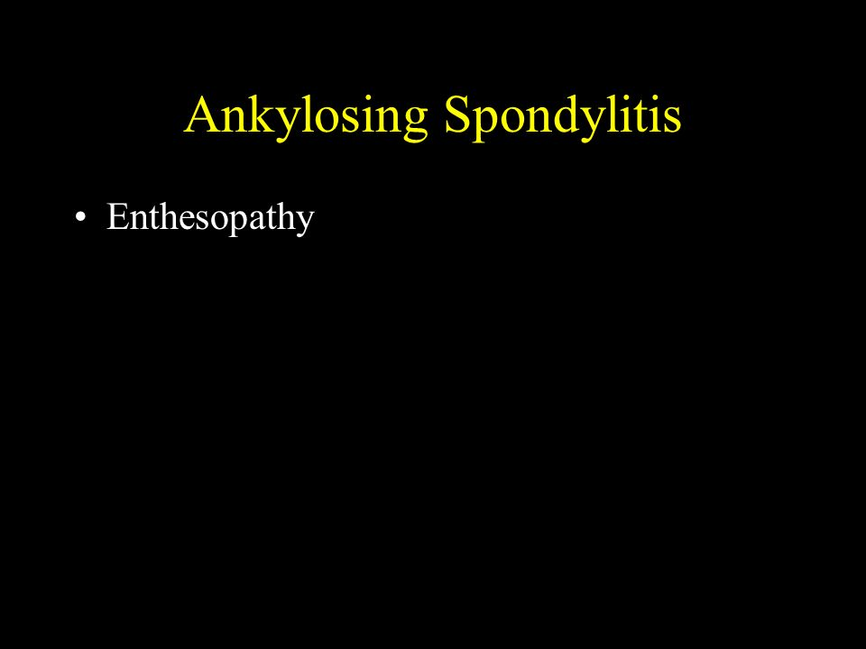 Ankylosing Spondylitis Enthesopathy