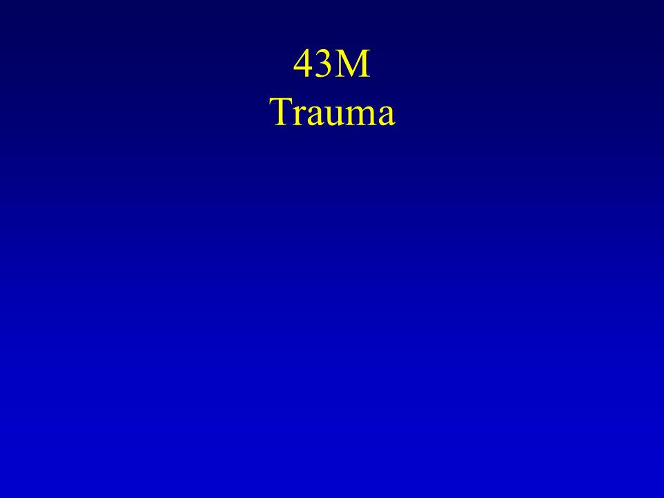 43M Trauma