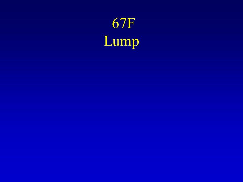67F Lump