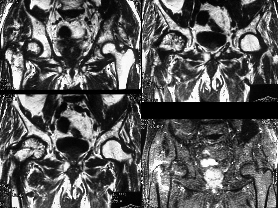 Osteochondroma Point away from joint Cartilage cap is hyaline Cap thickness > 1cm concerning Pain important to dx malignancy