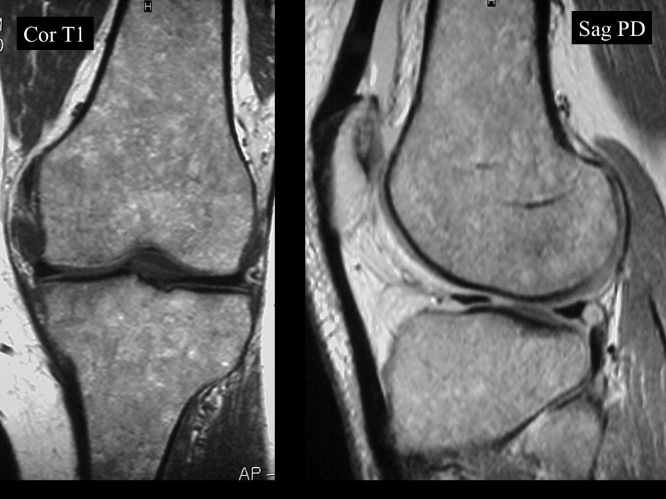 Transverse Patella FX Direct or indirect Transverse 70%, indirect Longitudinal, stellate or comminuted Bipartite - superolateral Dorsal defect - superolateral –Direct
