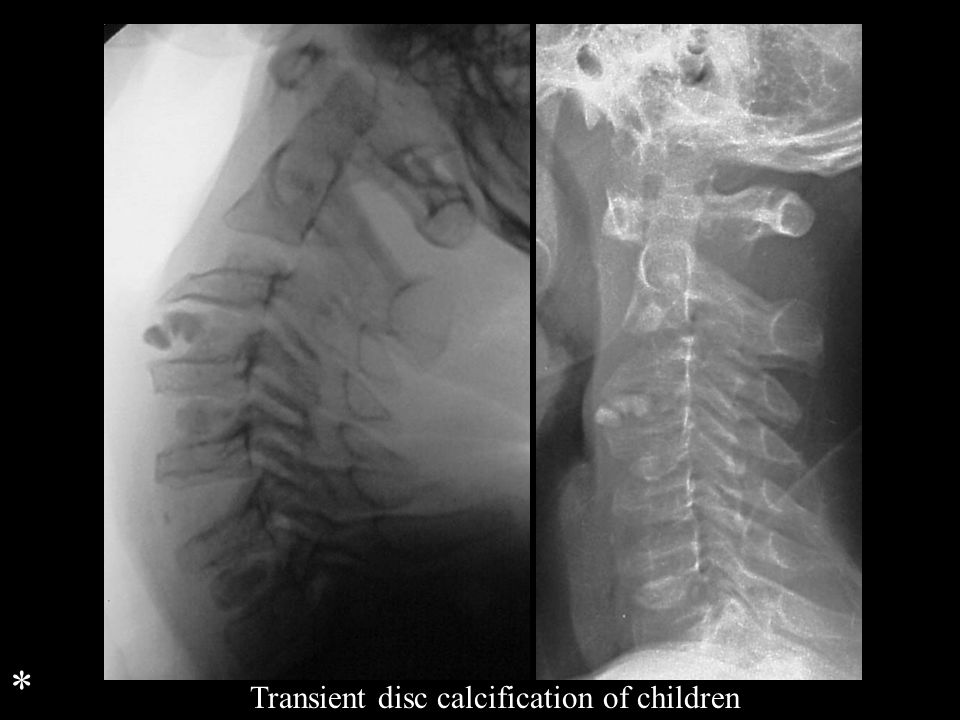 Transient disc calcification of children *