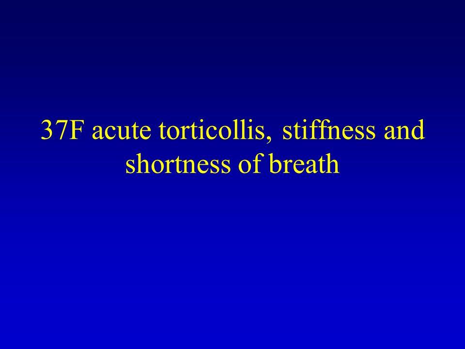 37F acute torticollis, stiffness and shortness of breath