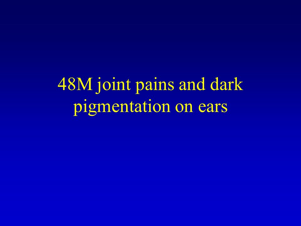 48M joint pains and dark pigmentation on ears