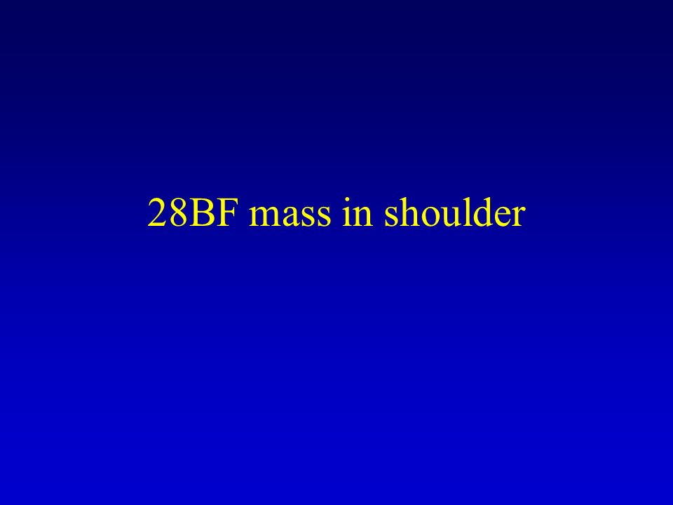 28BF mass in shoulder