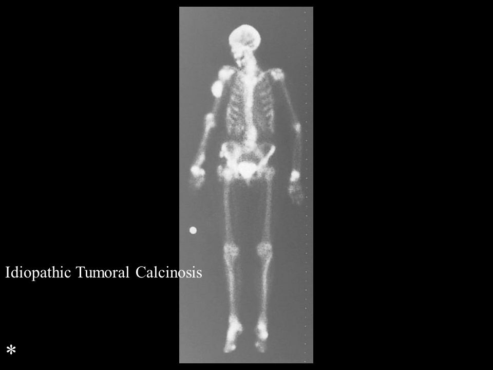 Idiopathic Tumoral Calcinosis *