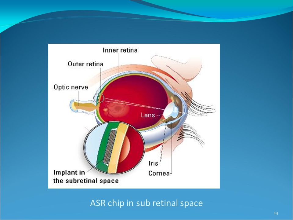 ASR chip in sub retinal space 14