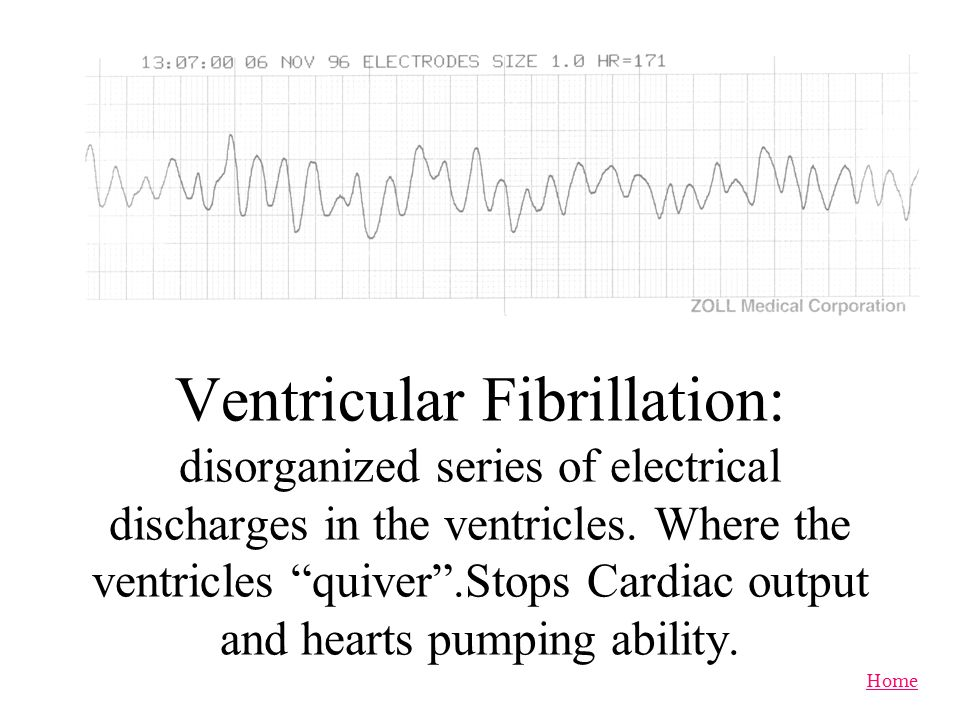 Home Ventricular Tachycardia: Fast heart rhythm which does not allow the heart to fill properly and cardiac output is compromised and reduced.