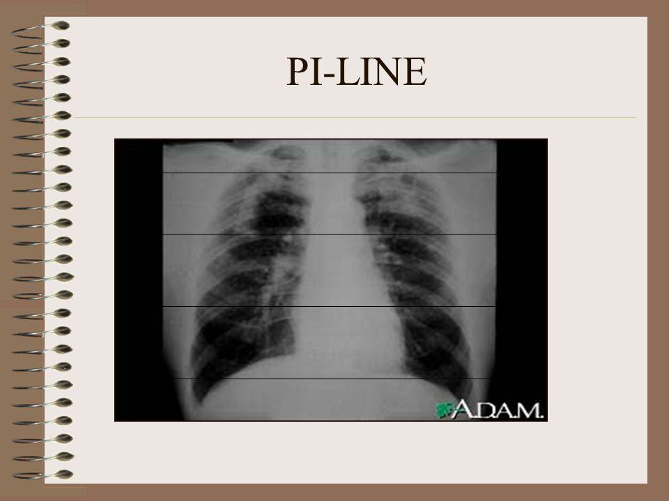 PI-LINE
