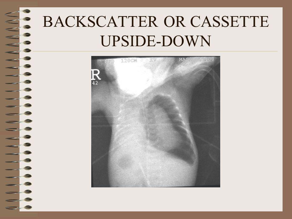 BACKSCATTER OR CASSETTE UPSIDE-DOWN