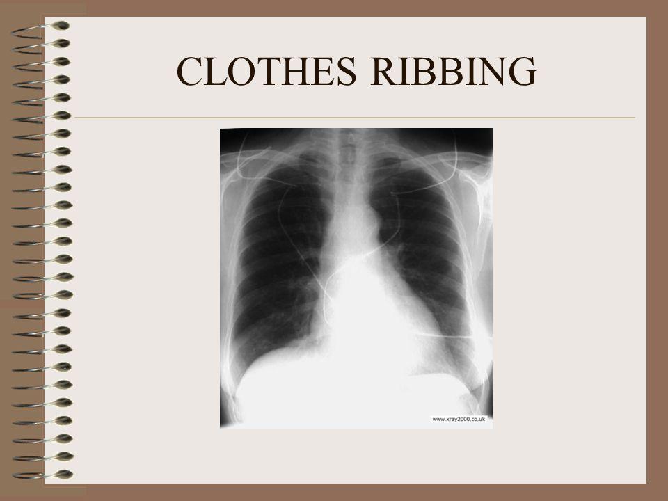 CLOTHES RIBBING