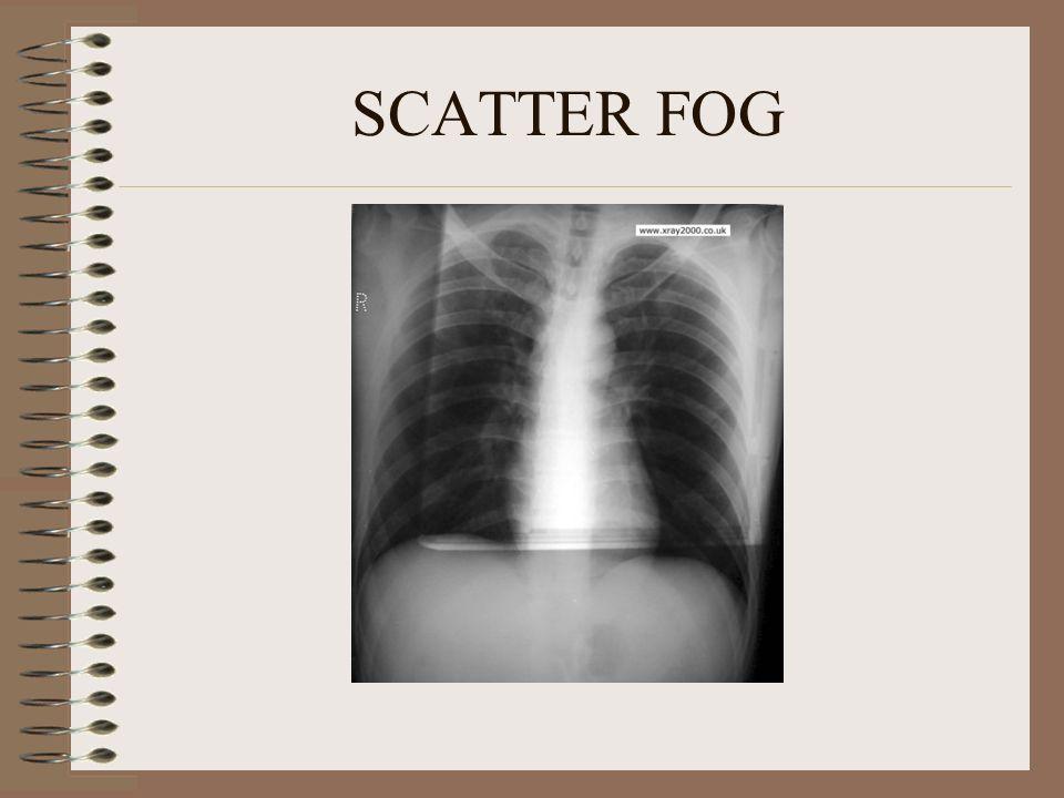 SCATTER FOG