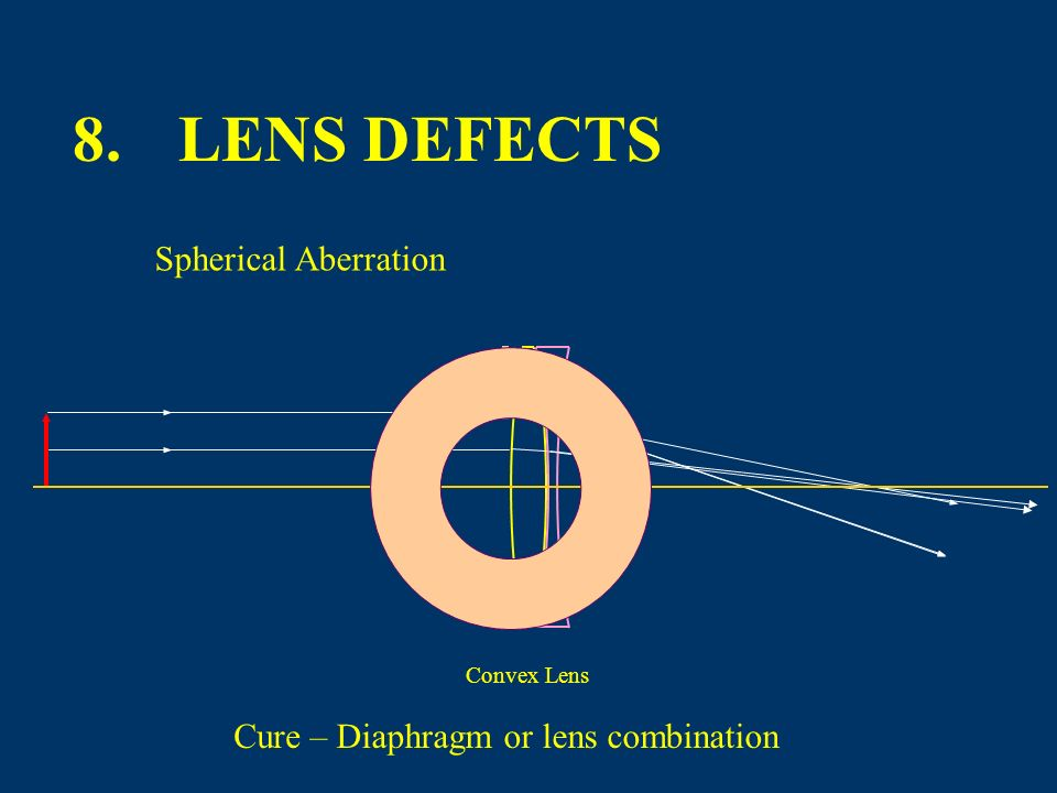 Convex lenses are positive converging lenses. Concave lenses are negative diverging lenses. Farsighted people use lenses similar to these.Nearsighted