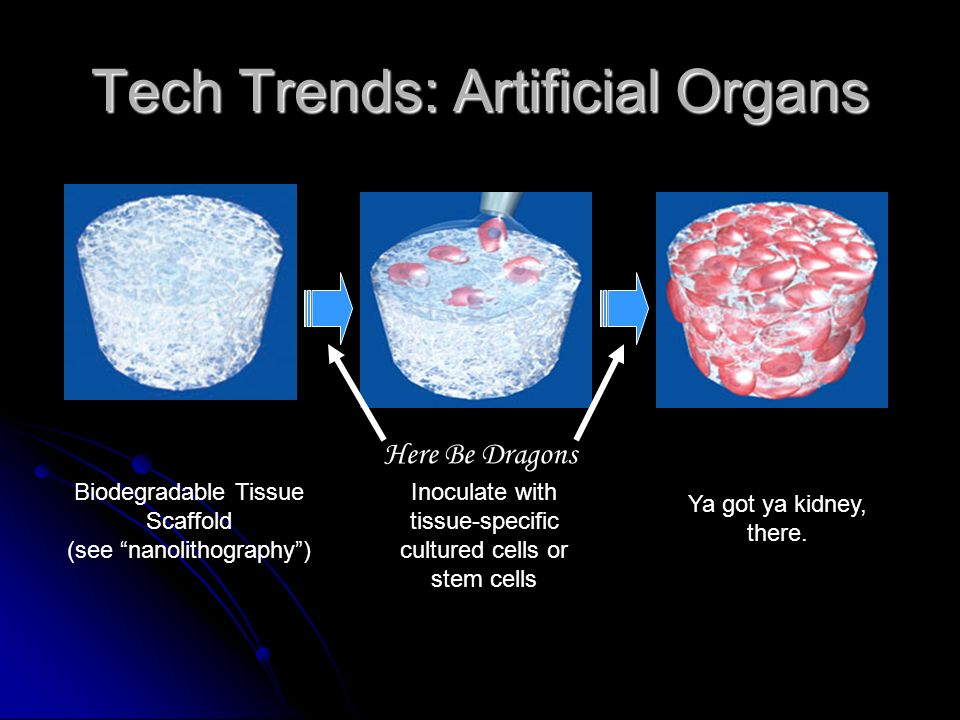 Tech Trends: Artificial Organs Continued progress with mechanical organs and tissues, especially pumps (hearts), tubes (vascular, ducts), joints, bone