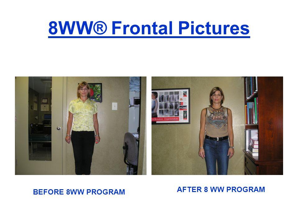 8WW® Frontal Pictures BEFORE 8WW PROGRAM AFTER 8 WW PROGRAM