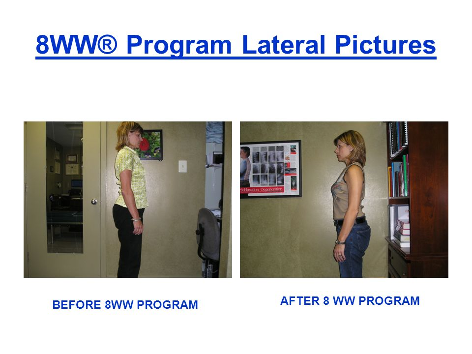 8WW® Program Lateral Pictures BEFORE 8WW PROGRAM AFTER 8 WW PROGRAM