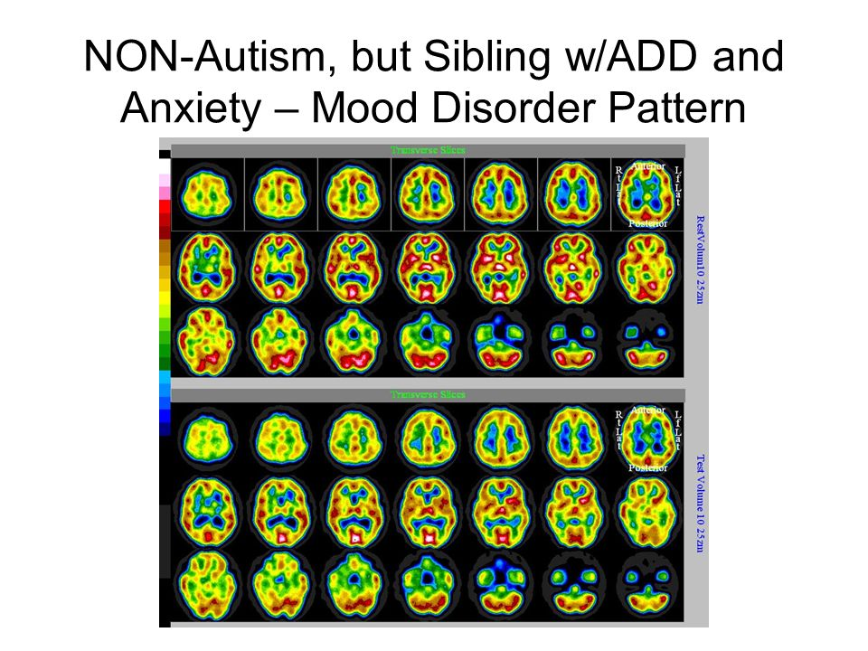 Mother of ASD Child Showing Post Traumatic Stress Disorder Pattern