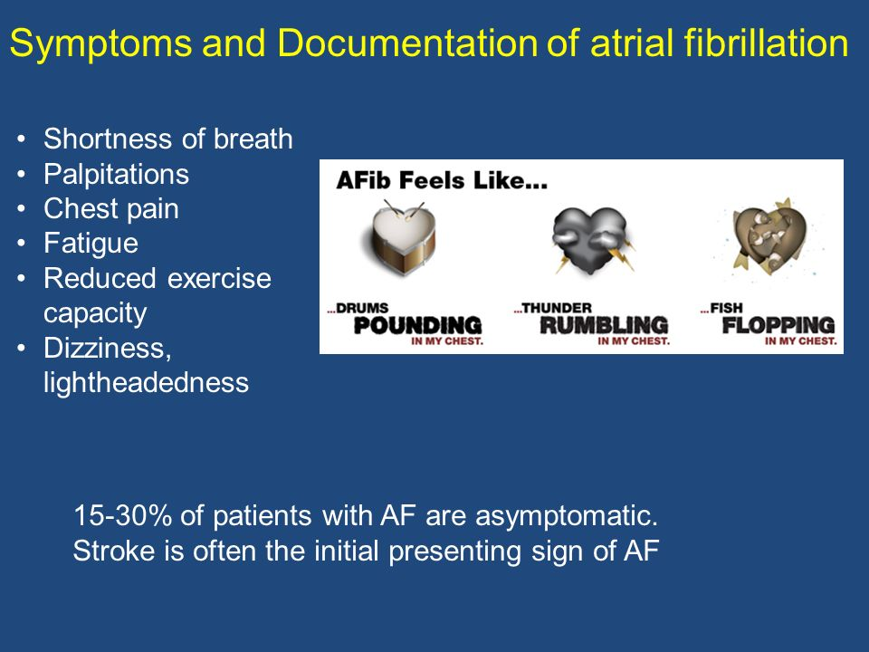 Symptoms and Documentation of atrial fibrillation 15-30% of patients with AF are asymptomatic. Stroke is often the initial presenting sign of AF Short