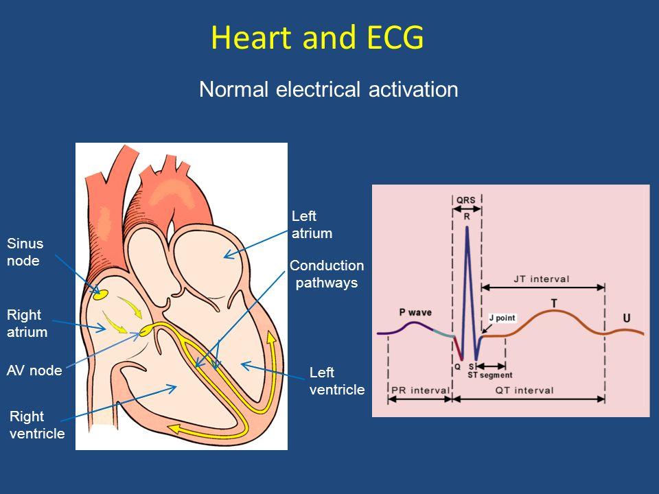 Atrial fibrillation: Spatial and temporal electrical heterogeneity