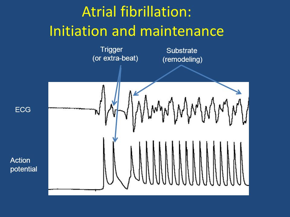 Atrial fibrillation: Initiation and maintenance ECG Action potential Trigger (or extra-beat) Substrate (remodeling)