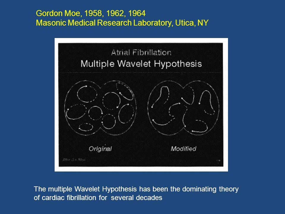 Gordon Moe, 1958, 1962, 1964 Masonic Medical Research Laboratory, Utica, NY The multiple Wavelet Hypothesis has been the dominating theory of cardiac
