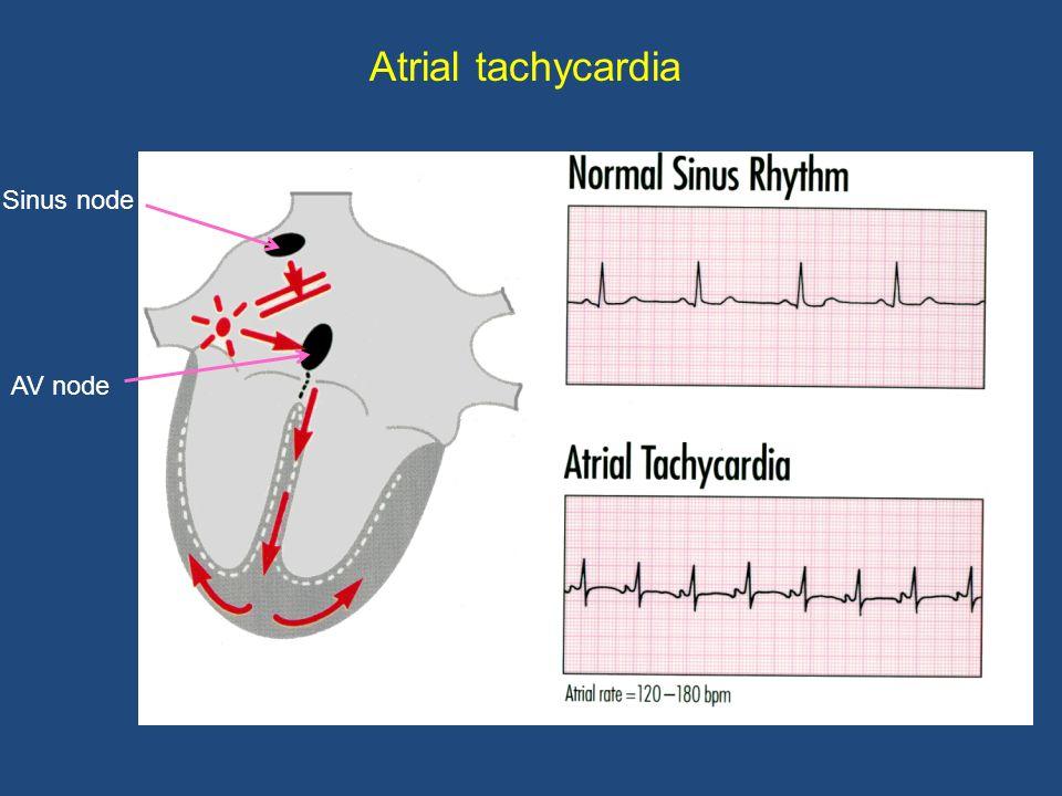Rhythm control: catheter ablation