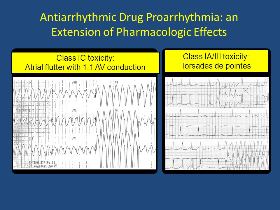 Antiarrhythmic Drug Proarrhythmia: an Extension of Pharmacologic Effects Class IC toxicity: Atrial flutter with 1:1 AV conduction Class IA/III toxicit