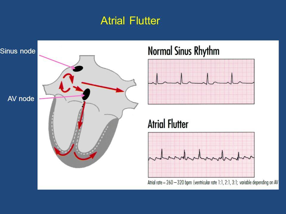 Atrial fibrillation (AF or AFib) AV node Sinus node