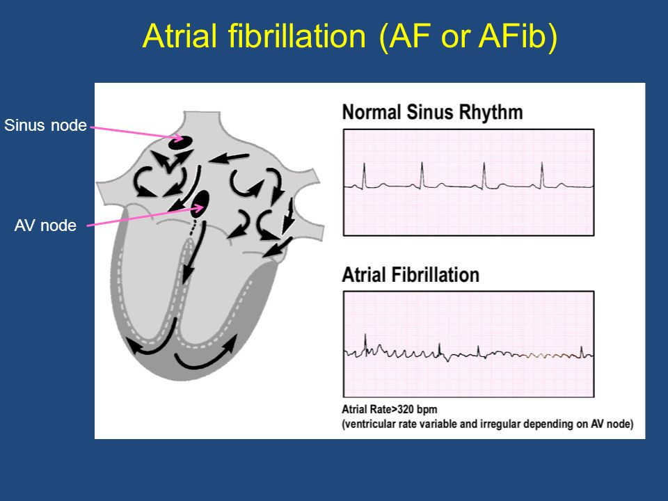 Atrial structural remodeling Can be due to: Rapid activation rate (AF) Hypertension Coronary artery disease Heart failure Age
