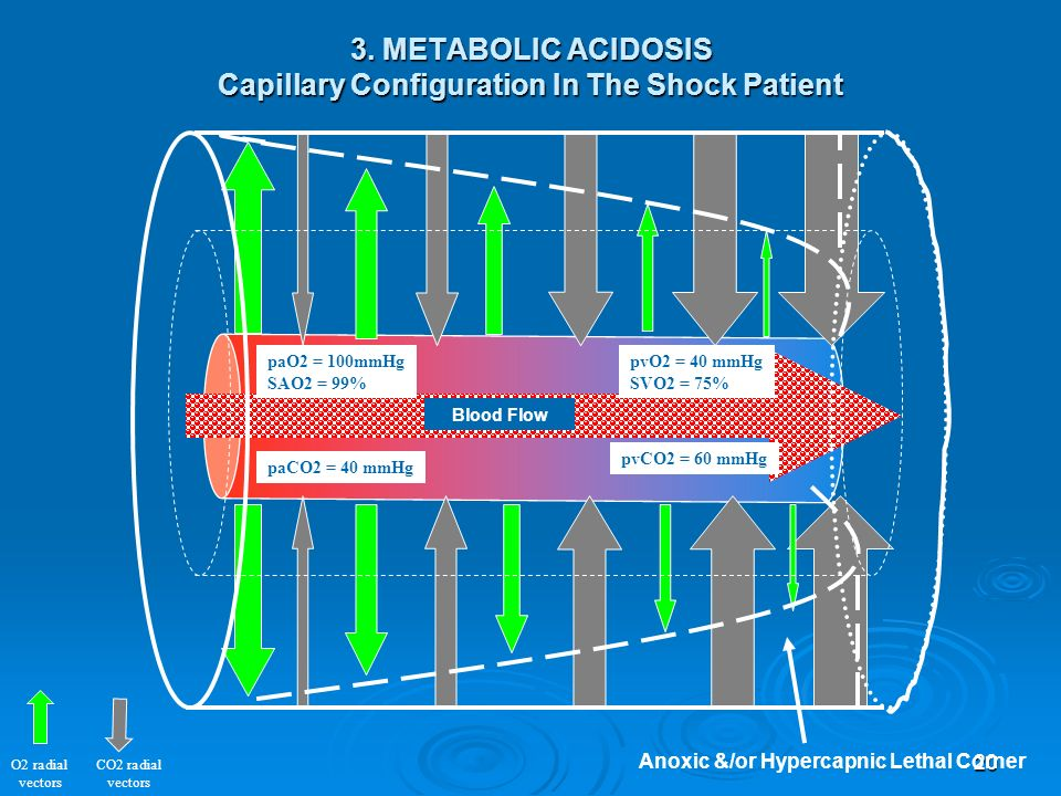 20 O2 radial vectors CO2 radial vectors paO2 = 100mmHg SAO2 = 99% pvO2 = 40 mmHg SVO2 = 75% paCO2 = 40 mmHg pvCO2 = 60 mmHg 3. METABOLIC ACIDOSIS Capi