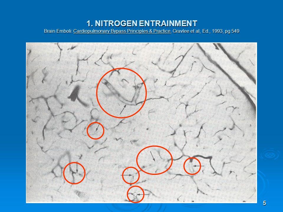 5 1. NITROGEN ENTRAINMENT Brain Emboli: Cardiopulmonary Bypass Principles & Practice, Gravlee et al, Ed., 1993, pg 549
