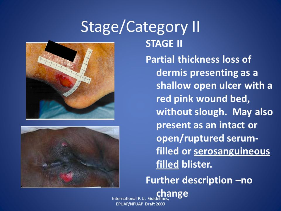 Stage/Category II STAGE II Partial thickness loss of dermis presenting as a shallow open ulcer with a red pink wound bed, without slough. May also pre