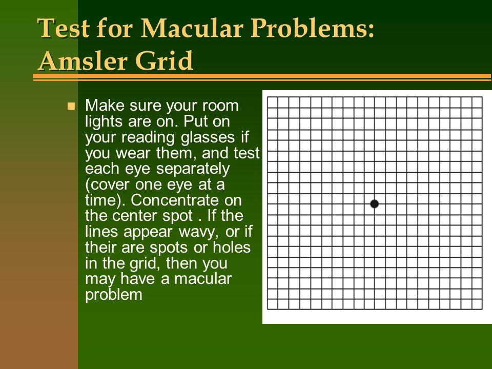 Test for Macular Problems: Amsler Grid n Make sure your room lights are on. Put on your reading glasses if you wear them, and test each eye separately