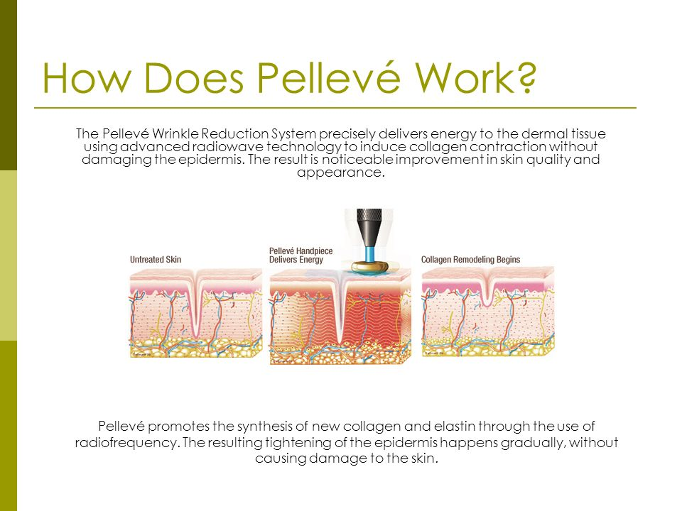 How Does Pellevé Work.