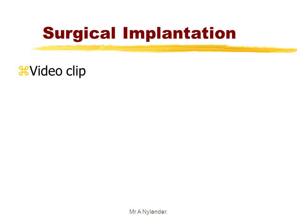 Mr A Nylander. Surgical Implantation zVideo clip