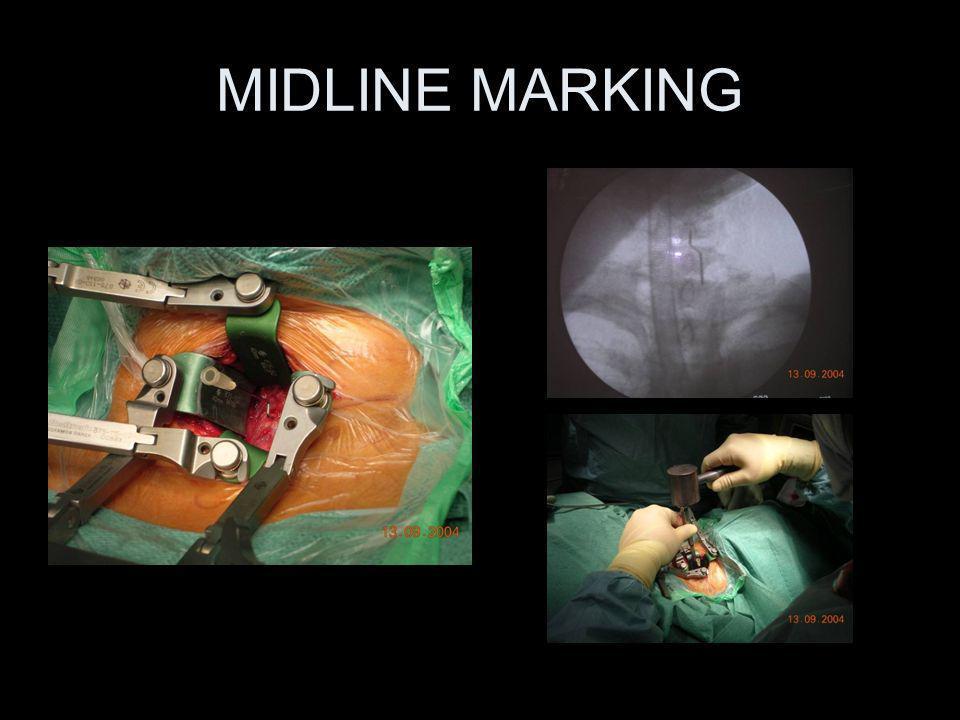 MIDLINE MARKING