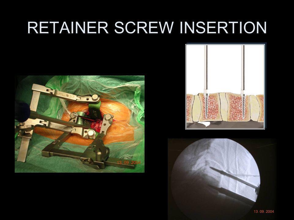RETAINER SCREW INSERTION