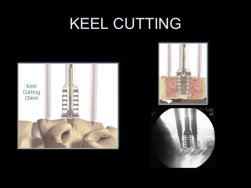 KEEL CUTTING