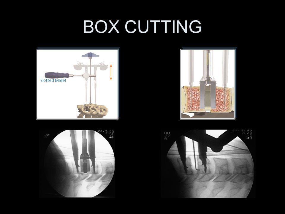 BOX CUTTING