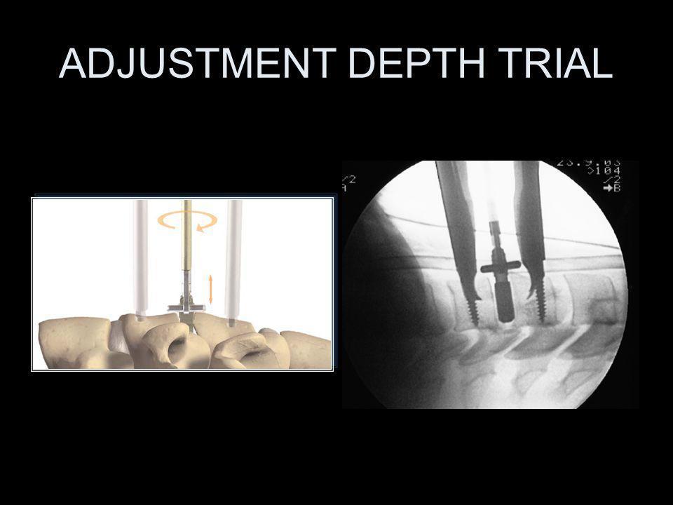 ADJUSTMENT DEPTH TRIAL