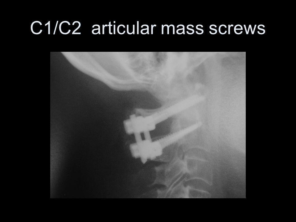 C1/C2 articular mass screws