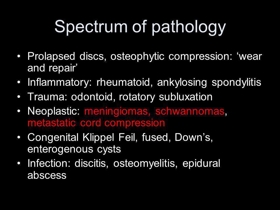 Spectrum of pathology Prolapsed discs, osteophytic compression: wear and repair Inflammatory: rheumatoid, ankylosing spondylitis Trauma: odontoid, rotatory subluxation Neoplastic: meningiomas, schwannomas, metastatic cord compression Congenital Klippel Feil, fused, Downs, enterogenous cysts Infection: discitis, osteomyelitis, epidural abscess