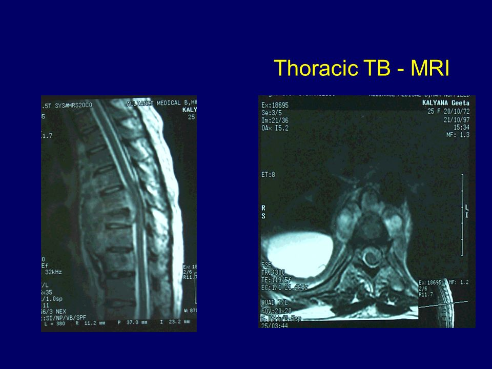 Thoracic TB - MRI