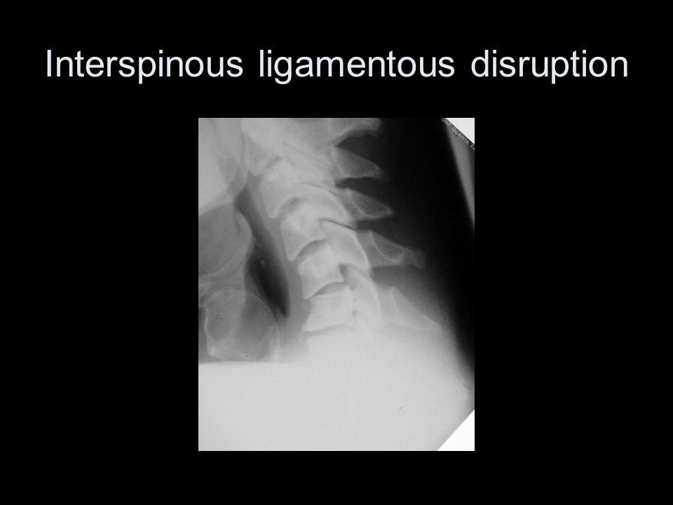 Interspinous ligamentous disruption