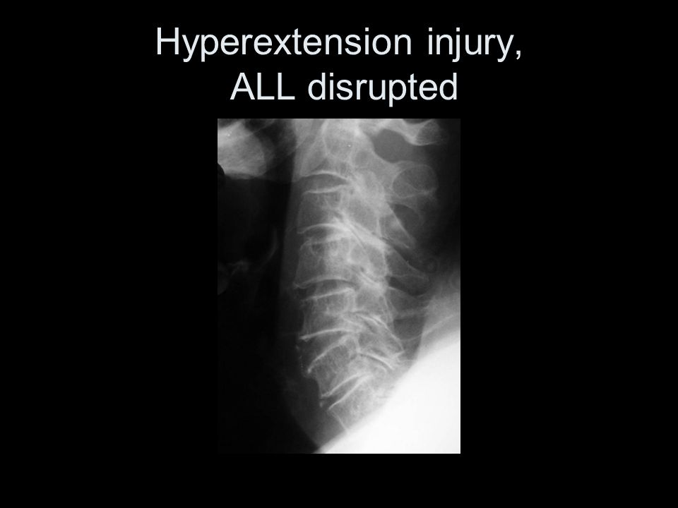 Hyperextension injury, ALL disrupted