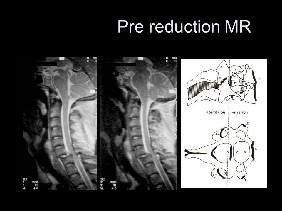 Pre reduction MR